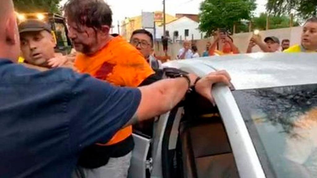 Após ser internado em Sobral, Cid Gomes foi transferido para Fortaleza