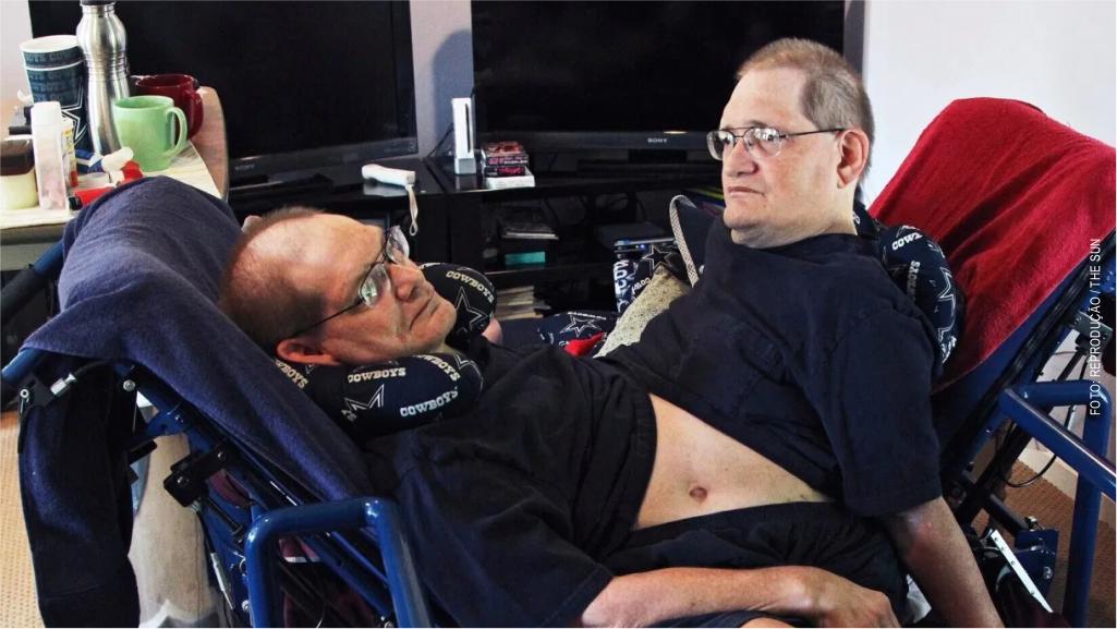 Morrem os gêmeos siameses mais antigos do mundo